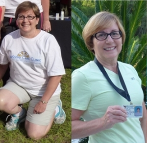 What does a 30 pound weight loss look like?